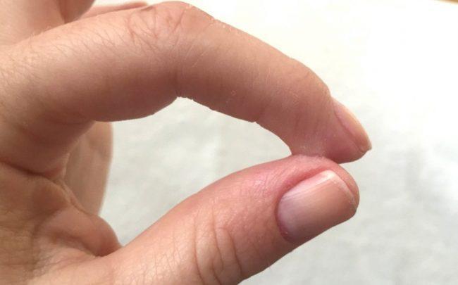 Оттираем суперклей с пальцев: доступные составы и народные средства